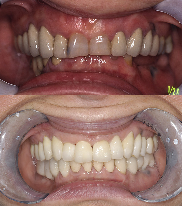 2000-2016. Review of a Full Mouth Rehabilitation
