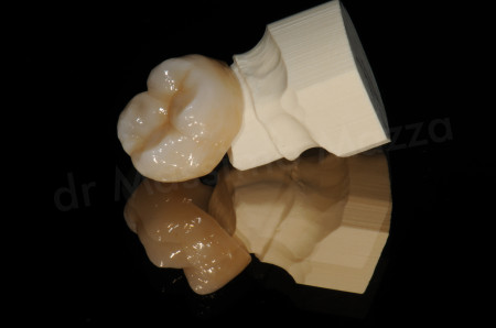 Metal Free Crowns A Viable Replacement For Traditional