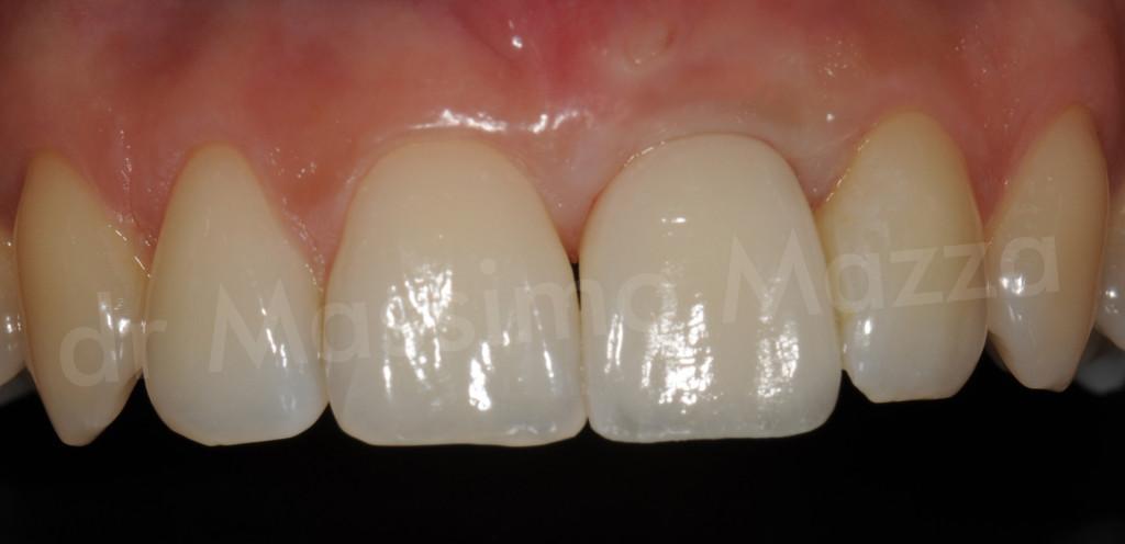"""Estetica Dentale: """"implantologia a carico immediato nell'area del sorriso"""""""